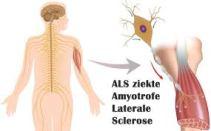 ICE BUCKET challenge, ALS, ziekte,